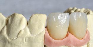 Protesis-implante-dental-ortodonica-puigrefagut