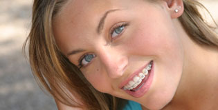 Damon-system-ortodoncia-puigrefagut