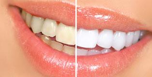 Estetica-ortodoncia-puigrefagut