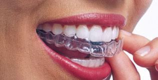 Tratamiento-Invisalign-Ortodoncia-Puigrefagut