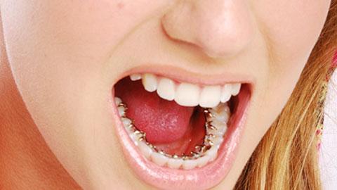 Incognito-Ortodoncia-Puigrefagut
